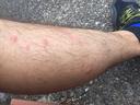 ヤブ蚊に襲われた脚